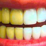 Почему не стоит проводить отбеливание зубов